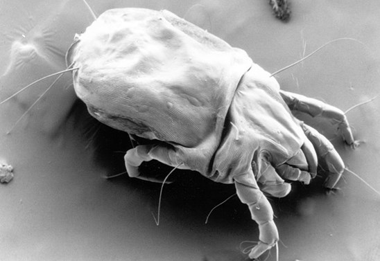 (Image: Electron micrograph of a female dust mite by Matt Colloff)